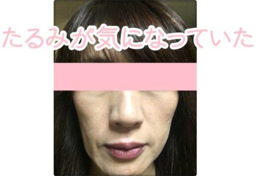 リフトアップ美顔器